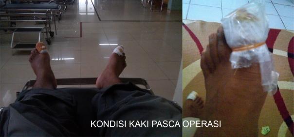 Pasca Operasi